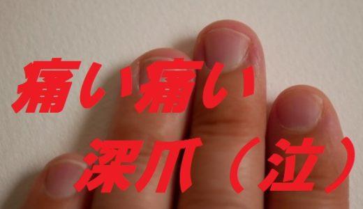 深爪で痛い時の対処法は絆創膏では不十分?病院に行く?正しい爪の切り方も!